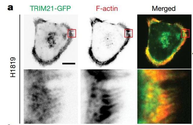 《自然》:绝了!科学家发现,癌细胞竟然能通过调节骨架蛋白结构,让自己变硬,进而改变能量利用方式丨科学大发现